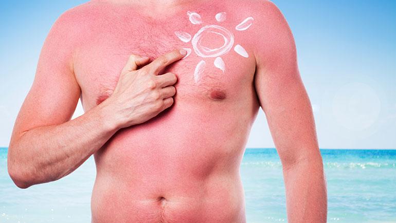 Tips voor een verbrande huid